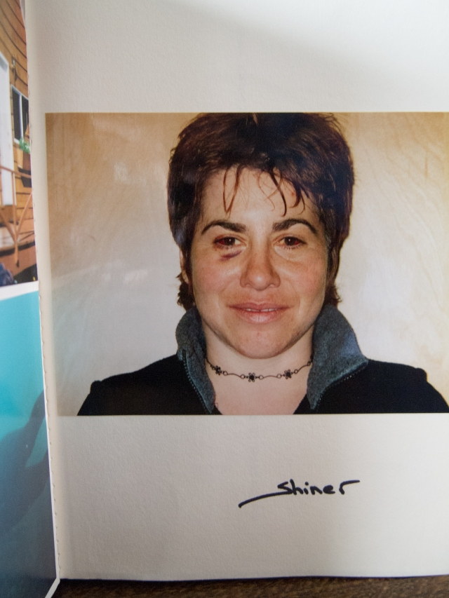 "Shiner  . . . Image in my first dive log. Me just after my 37th birthday with ""mask squeeze""."